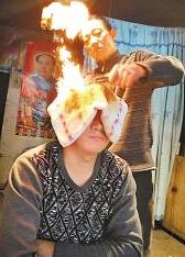 [新聞] 重慶民間高人火燒療法驅頑疾