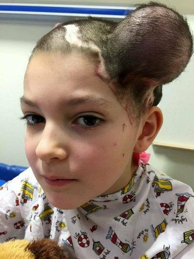 [新聞] 女童頭皮下「灌氣球」 醫生:勇敢的一家人