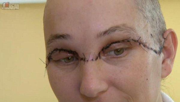 [新聞] 電鑽捲頭髮 扯甩女子整塊頭皮