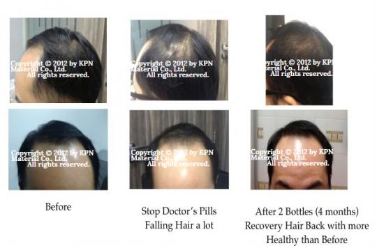 hair-01