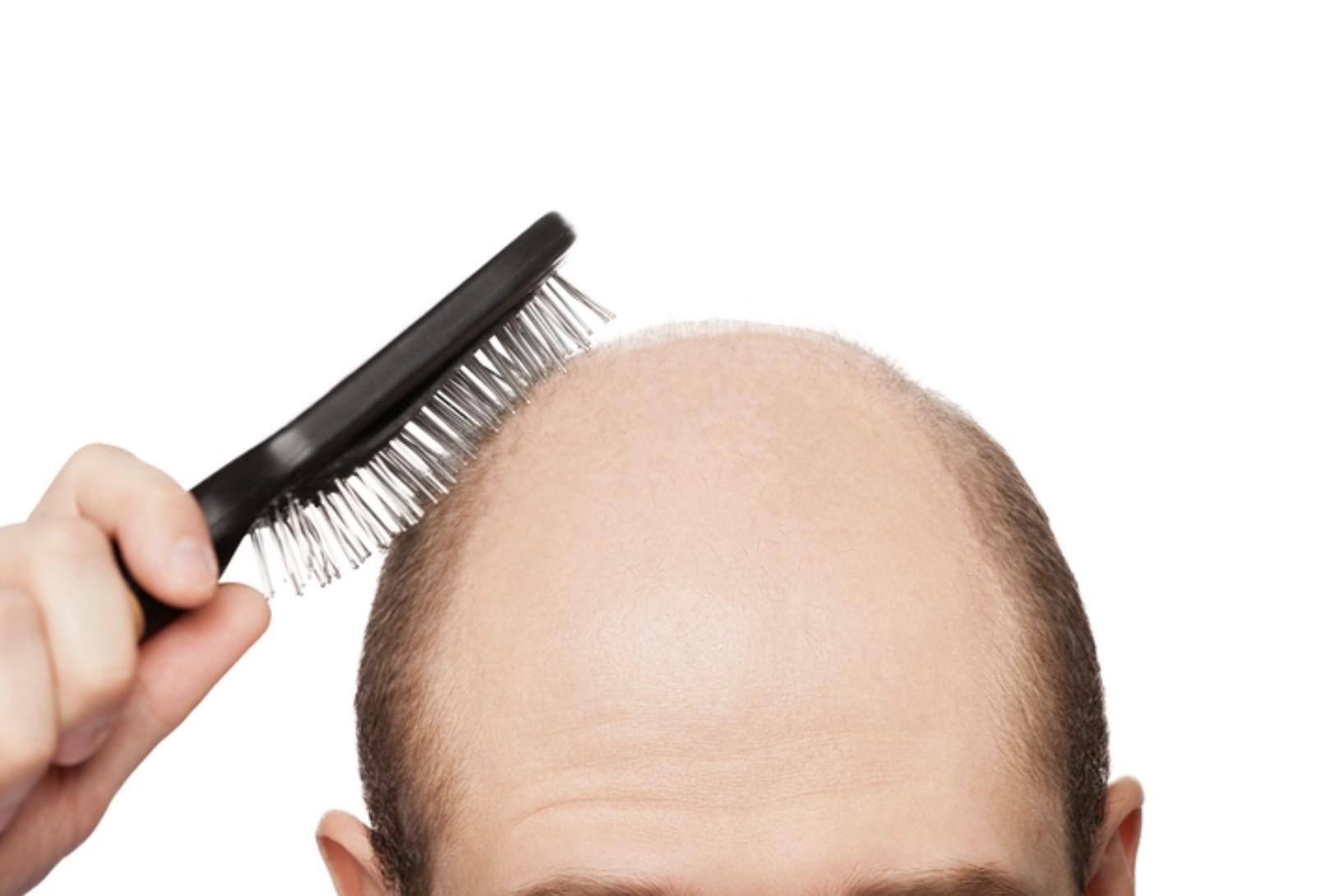 江湖傳聞:重訓做太多的人比較容易禿頭?