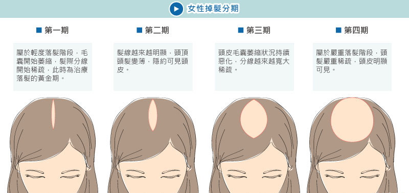 女性落髮的分期