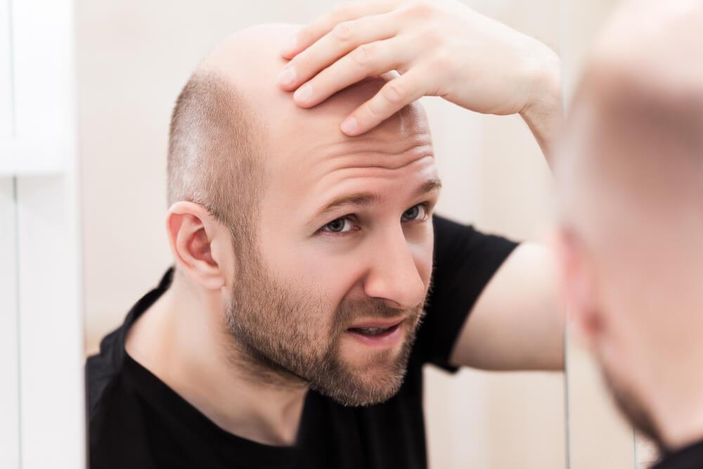 地中海禿頭是不是雄性禿?中頂不想發光的困擾!