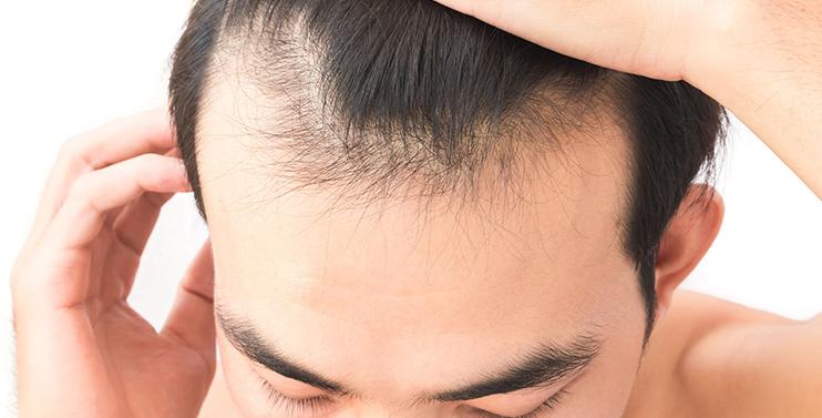 機器人植髮 速度快 毛囊存活率逾九成