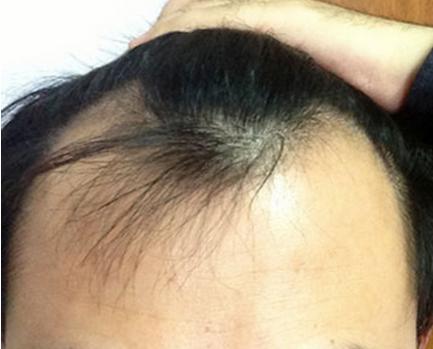 禿頭就能看出你的性格 你相信嗎?