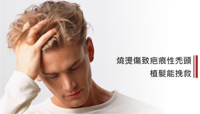 燒燙傷致疤痕性禿頭 植髮能挽救