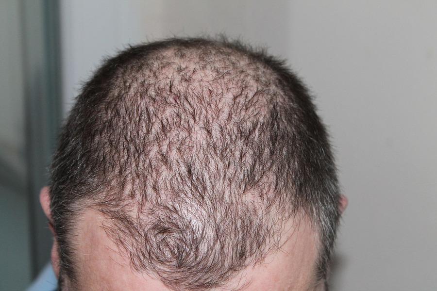 禿頭有新解方 骨質疏鬆藥可生髪