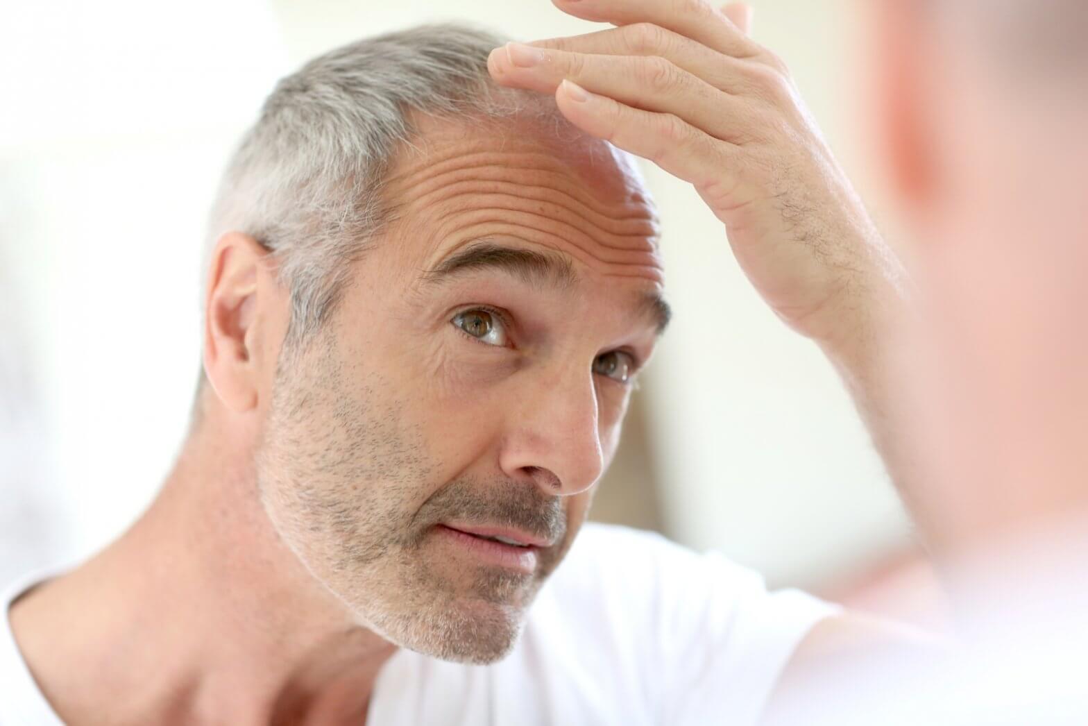 頭髮長很慢?解析異常掉髮原因,維持髮量靠健康的頭皮!