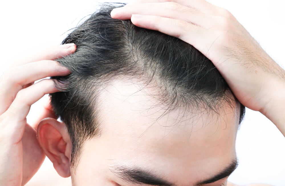 前額禿了怎麼辦?瞭解前額禿徵兆和禿頭治療