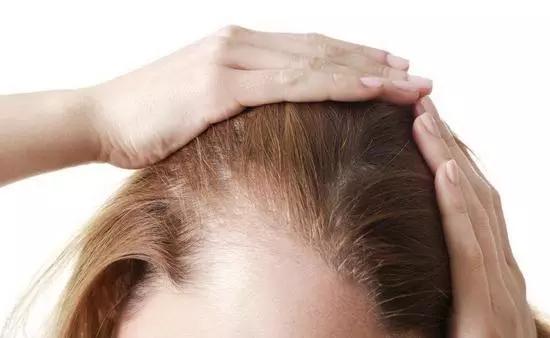 3D打印有望拯救脫發 無限量供應毛囊的速率生長毛囊