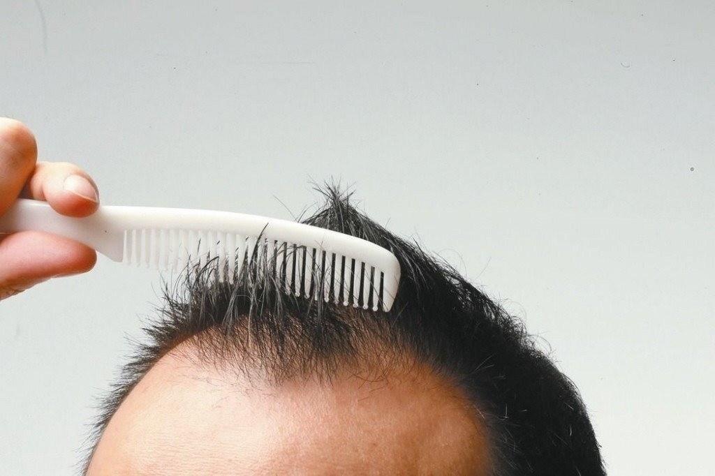 如何判斷自己是脫髮還是掉髮呢?教你從三方面鑒別