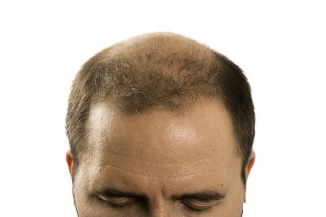 年輕人愛到韓國做植髮?醫生告訴你,你需要瞭解的這些植髮常識