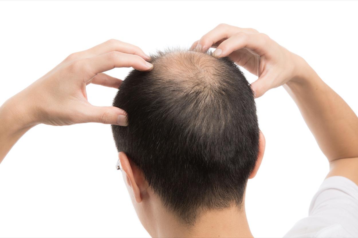 [新聞] 禿頭有前兆!雄性禿的原因和緩解方式