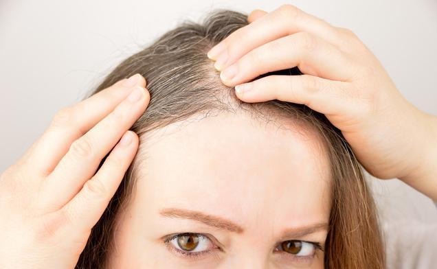 白頭髮多,很是困擾?讓白髮變黑,有4個辦法可以一試