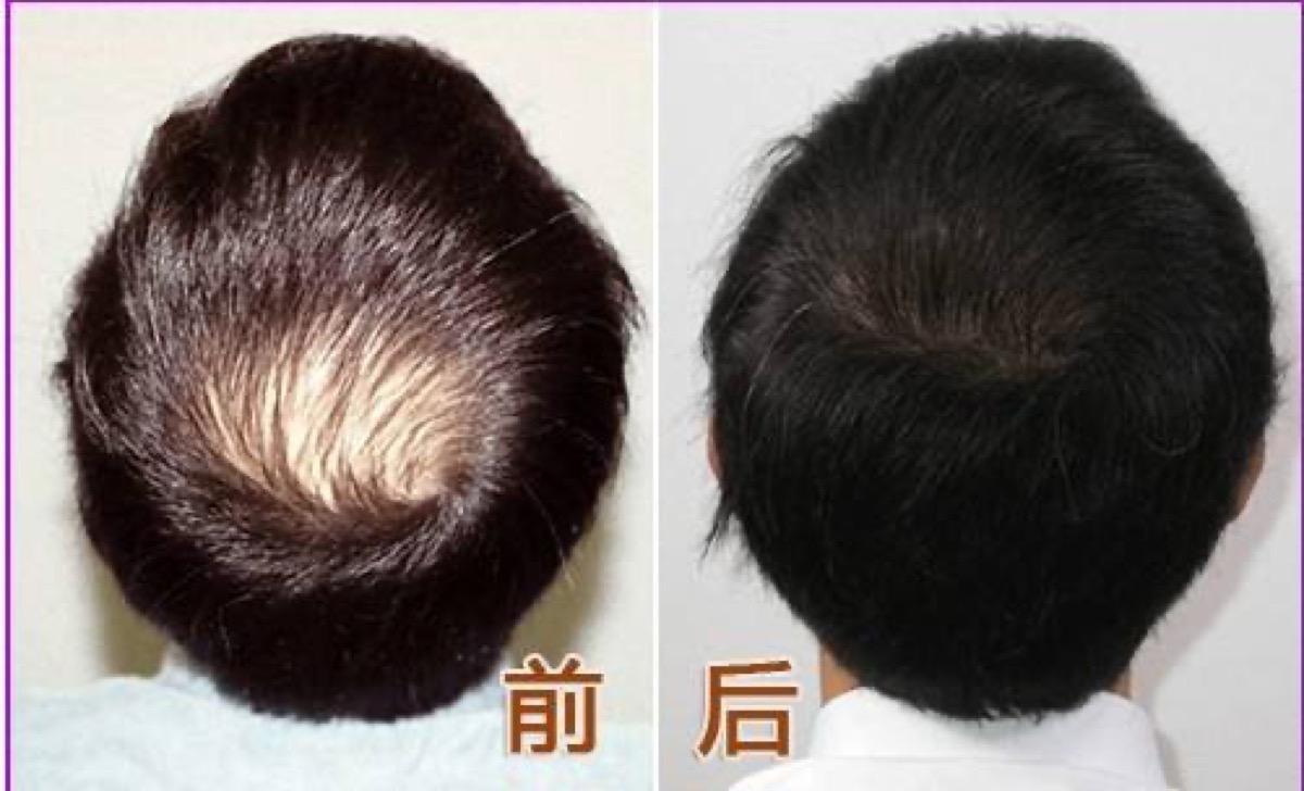 [新聞] 植髮前後你需要注意這幾點,植髮後效果會更好